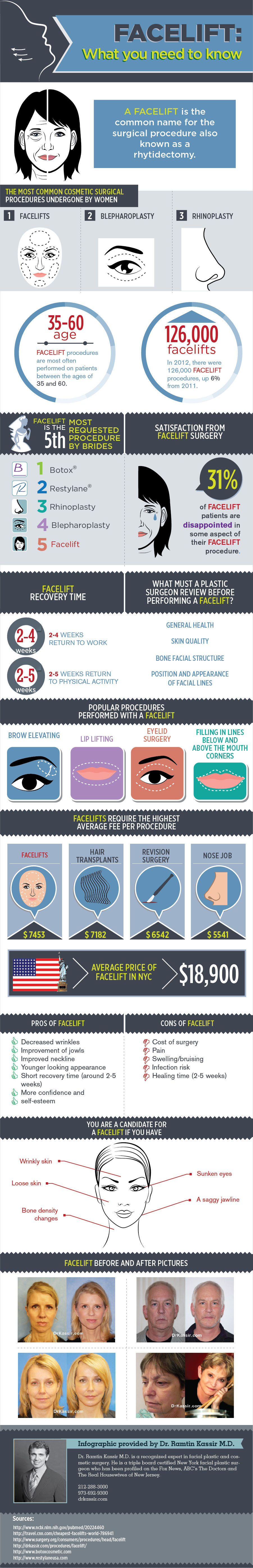 All About Facelifts-Infographic