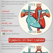 Congenital Heart Defects Statistics